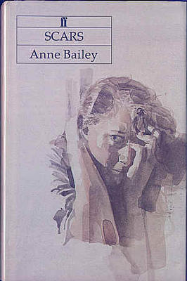 Scars by Anne Bailey